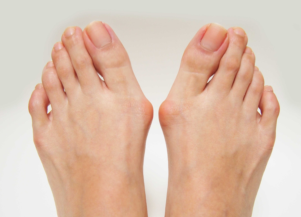 A pair of feet with bunions