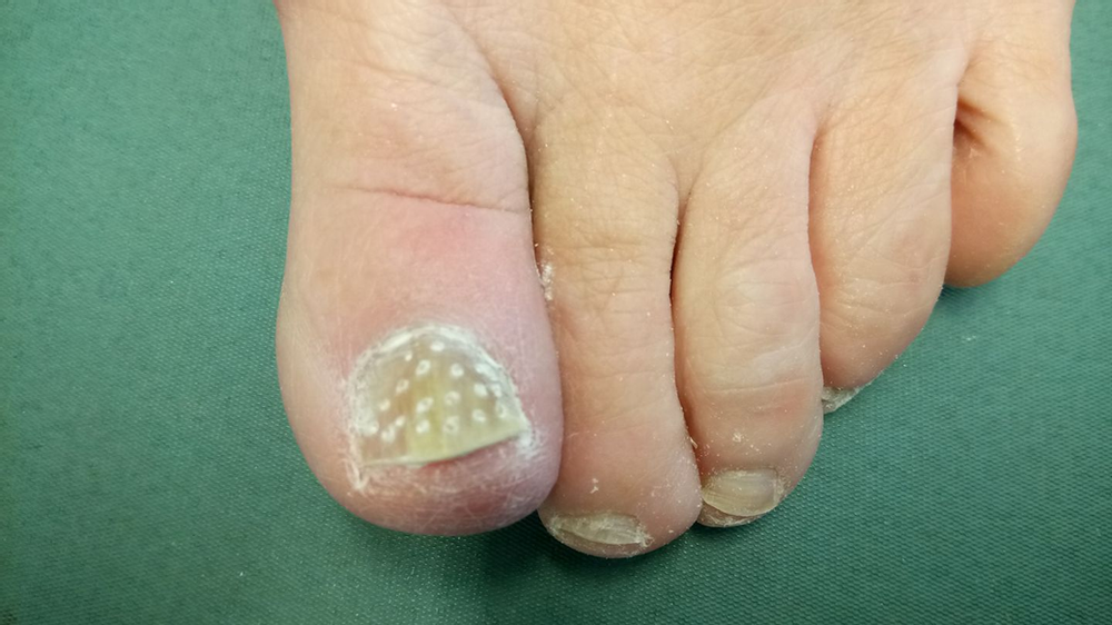 A toe undergoing treatment for fungal nail
