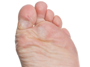 Hard skin or callus on a foot