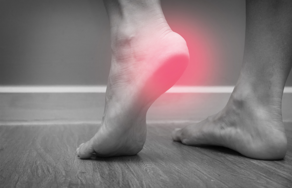 Bare feet with heel pain due to plantar fasciitis