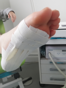 Plantar fasciitis strapping technique step 6