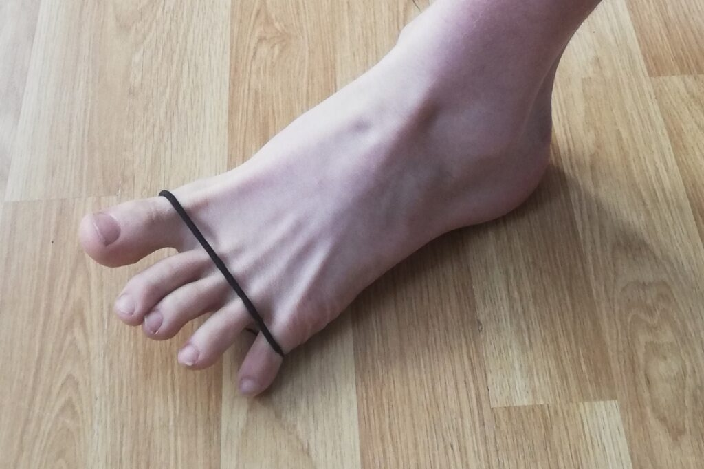 A foot with a rubber band for strengthening exercises